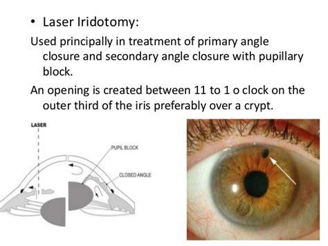 diode laser cycloablation glaucoma management dr a r rajalakhmi 11 05 16