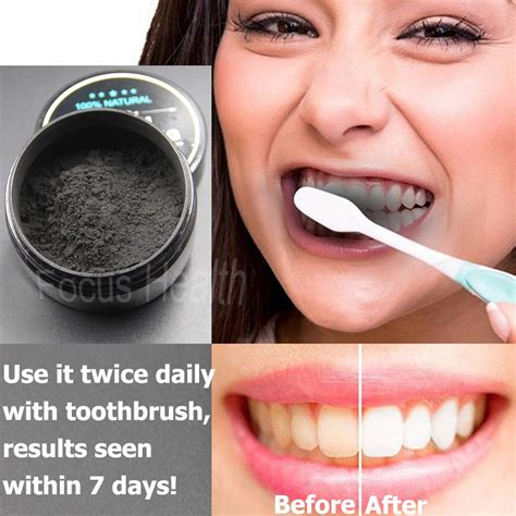 buy teeth whitening cleaning activated