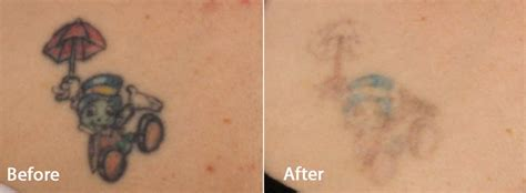 tattoo removal experience picoway at contour all colors no problem contour