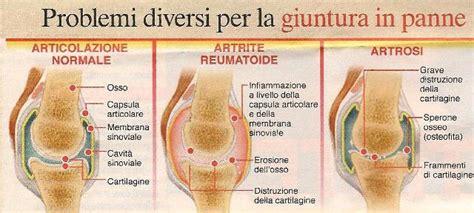 alimenti per cartilagine artrite artrosi osteoartrite osteoartrosi reumatismi