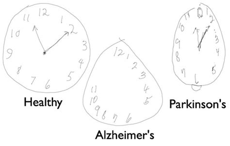 clock drawing test detecting alzheimer s disease by drawing a clock with
