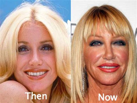 suzanne somers celebrity plastic surgery 24 24 worst celebrity plastic surgery before and after