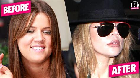 khloe kardashian plastic surgery 2015 ugly duckling to surgery swan khloe kardashian went under
