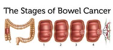 understand bowel cancer bowel cancer support uk