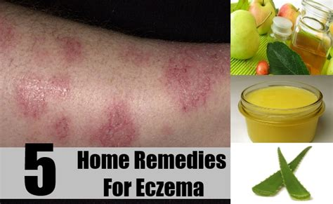home remedies for eczema treatments cure for