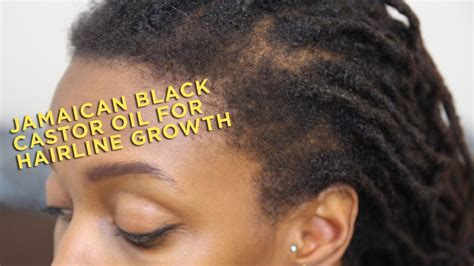 hairline products for black men product review jamaican black castor oil for hairline
