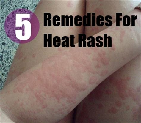 5 heat rash herbal remedies treatments and cure