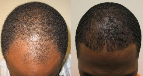 jobs in hair transplant technicianjobs london hair transplants make men look more attractive youthful