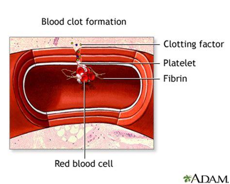 Blood Clot After C Section Symptoms by Blood Clot Formation Medlineplus Encyclopedia Image