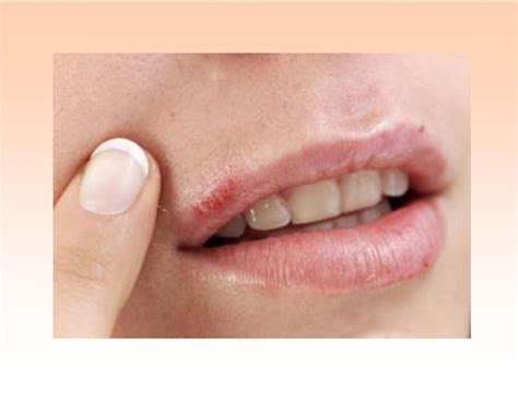 how cold is cold for a how to get rid of cold sores