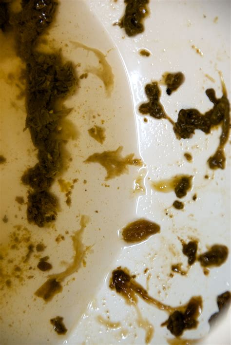 Identifying Parasites In Stool by In Middle Of 2nd Cleanse Vomiting Help To Identify Ask