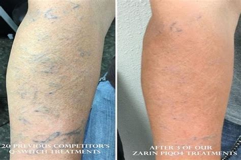 tattoo removal stages healing stages of removal removal