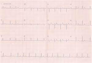 de eletrocardiografia fibrila 199 195 o atrial diagn 211 stico
