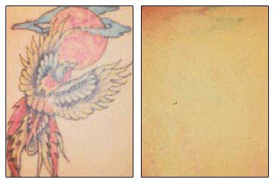 tattoo removal in cleveland ohio removal cosmetic surgery cleveland oh