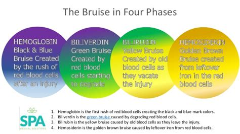 bruise colors the healing bruise in four colors