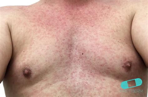 noroid dermna rash dermatology zika virus rash