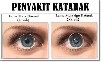 Obat Tradisional Mata Katarak pengobatan penyakit mata katarak tradisional sembuh