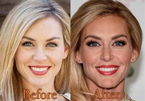 Jessica Robertson Surgery | jessica robertson plastic surgery before and after botox
