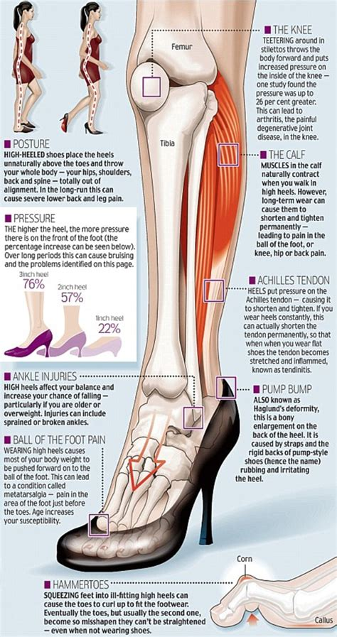 How to wear high heels healthily from choosing a solid platform to ankle exercises daily mail