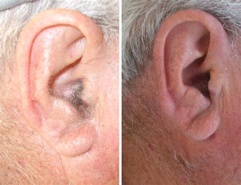 hair ears cut hair از بین بردن موهای زائد مردان