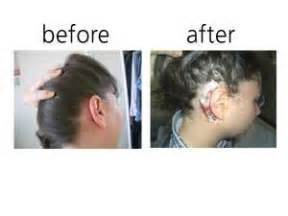 should i wash my hair before getting it colored cochlear implant surgery kate s cochlear implant