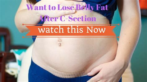 How To Lose Belly Fat After C Section Youtube