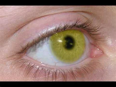 coolest eye colors cool eye color change