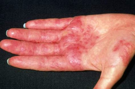 boat pox pictures 7 types of rashes you should never ignore these are the