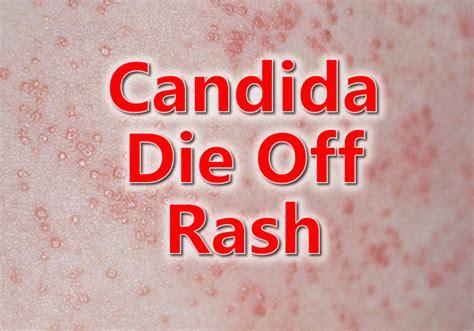 Sugar Detox Symptoms Rash by Candida Die Rash Yeast Rash Candida Rash Candida