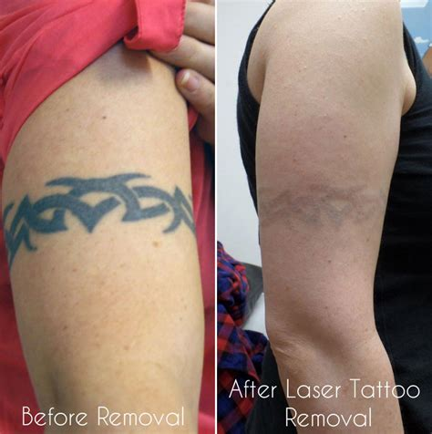 tattoo excision laser removal birmingham uk