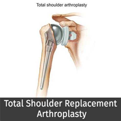 replacement shoulder information total shoulder replacement arthroplasty in india at