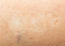 scar on the human skin stock photo image 44020179 burn scar stock photos royalty free images