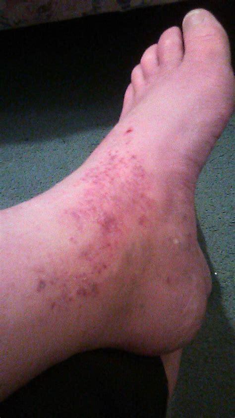 hot rash     person crazy  scratching