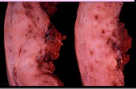 placenta attached to c section scar flashcards placenta pediatric abnormalities what is