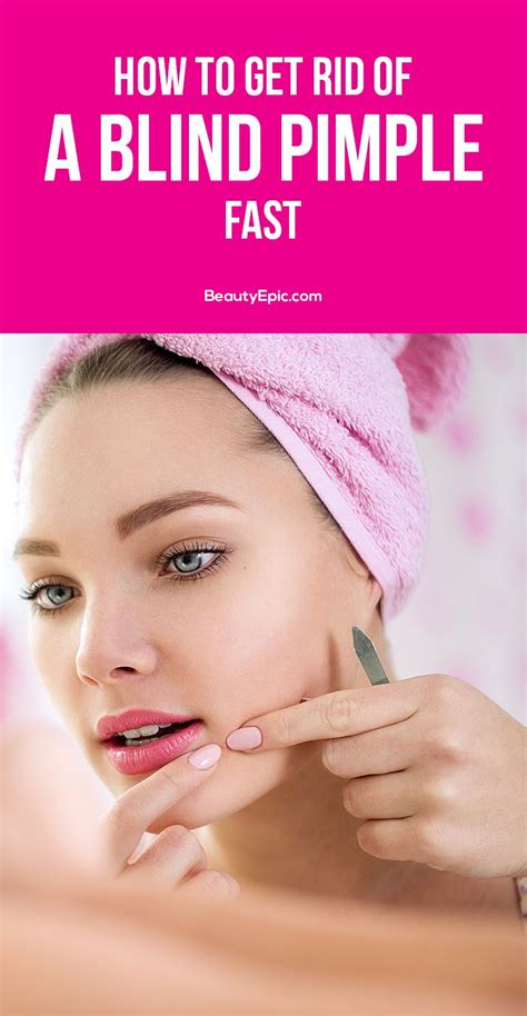 How To Remove A Blind Pimple 13 easy ways to get rid of blind pimple fast remedies