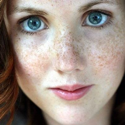 home remedies  skin darkblack spots