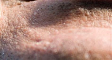 90s male pubes the art of shaving ingrown hair night cream male models