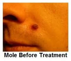 how to get rid of moles skin mole removal at home