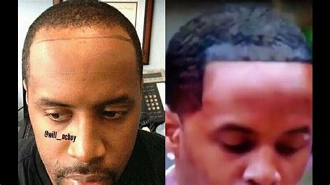 brooklyn hairline brooklyn hairline brooklyn hairline i thought lebron s