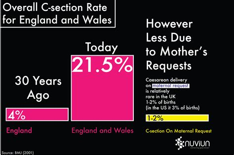 uk caesarean section rates is business culture driving unnecessary c sections