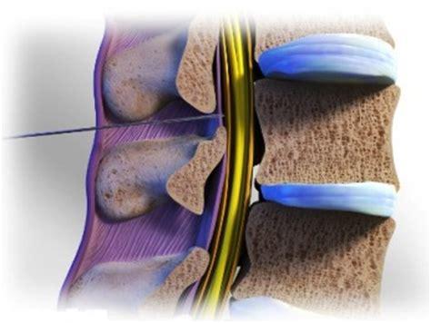 Salep Topikal jenis obat untuk sakit tulang belakang topikal