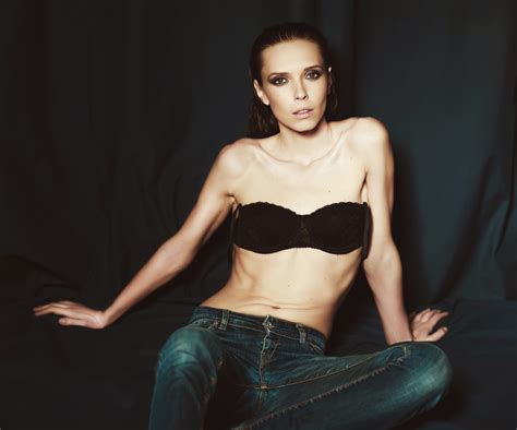 On The Anorexic Model Problem She Says by Anorexia Not Entirely The Media S Fault Says 59 Of