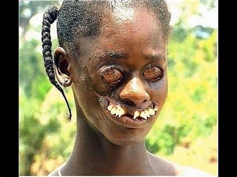 imagenes asquerosas de enfermedades las 9 enfermedades mas bizarras y extra 241 as del mundo