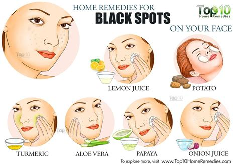 Aloe Vera Facts Home Remedies For Black Spots On Your Face Top 10 Home