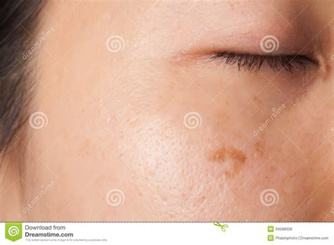 human skin with acne royalty free stock photos image 28330198 blemish and spots stock photo image of spots acne 34588328
