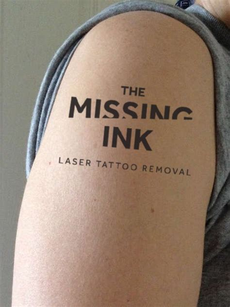 tattoo healing missing ink the missing ink laser tattoo removal private medical