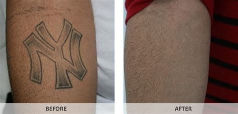 cheap tattoo removal nyc laser removal in nyc westchester bronx by studio