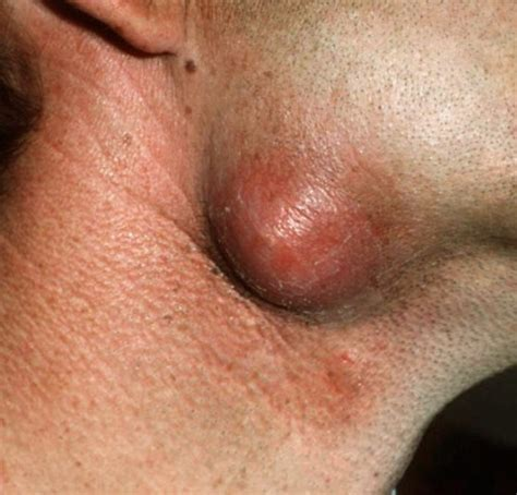 sebaceous cyst picture pin sebaceous cyst pictures on