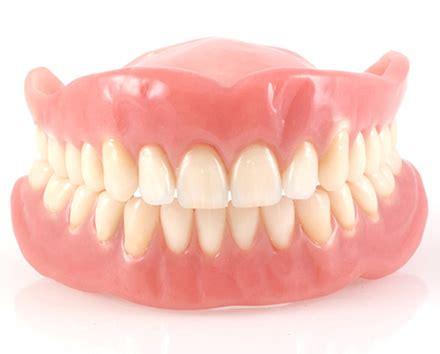 tipi di protesi dentarie mobili protesi dentarie mobili fisse combinate ariano irpino
