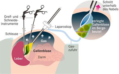 wann muss gallenblase entfernt werden gallensteine wann muss operiert werden apotheken umschau